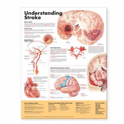 Understanding Stroke Anatomical Chart 9781587799884