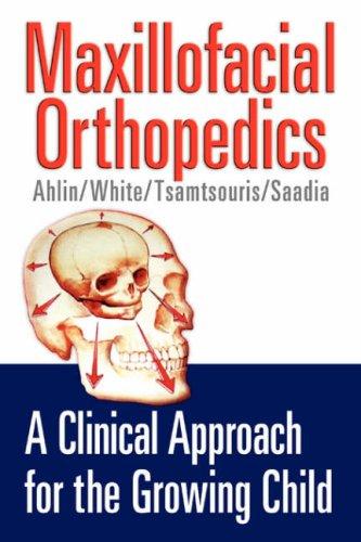Maxillofacial Orthopedics 9781591609407
