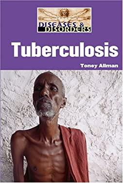 Tuberculosis 9781590189689