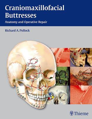 Craniomaxillofacial Buttresses: Anatomy and Operative Repair 9781604065800