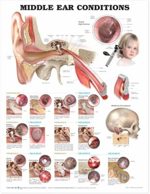 Middle Ear Conditions Anatomical Chart 9781605470955
