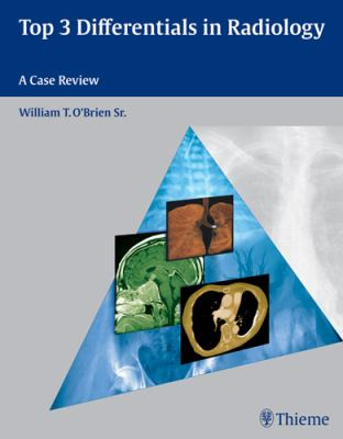 Top 3 Differentials in Radiology: A Case Review 9781604062267
