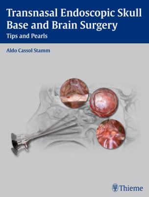 Transnasal Endoscopic Skull Base and Brain Surgery: Tips and Pearls 9781604063103