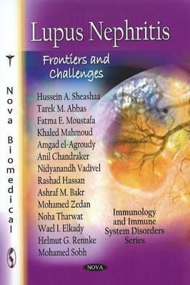 Lupus Nephritis: Frontiers and Challenges 9781616683672