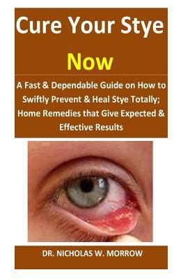 Cure Your Stye Now: A Fast & Dependable Guide on How to Swiftly Prevent & Heal Stye Totally; Home Remedies that Give Expected & Effective Results