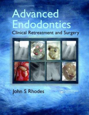 Advanced Endodontics: Clinical Retreatment and Surgery 9781841844367