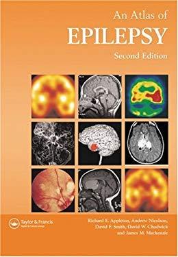 Atlas of Epilepsy 9781842140277