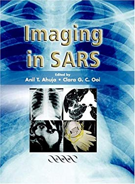 Imaging in Sars 9781841102191