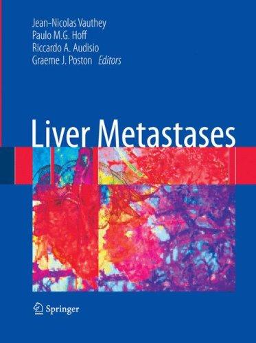 Liver Metastases 9781846289460