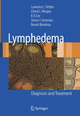 Lymphedema: Diagnosis and Treatment 9781846285486