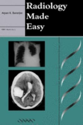 Radiology Made Easy 9781841100142