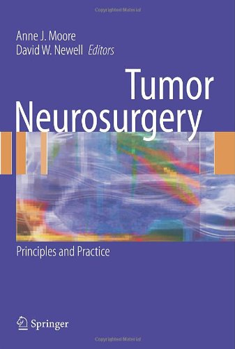 Tumor Neurosurgery: Principles and Practice 9781846282911