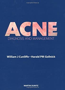 Acne: Diagnosis and Management