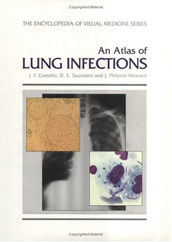 An Atlas of Lung Infections 9781850704560