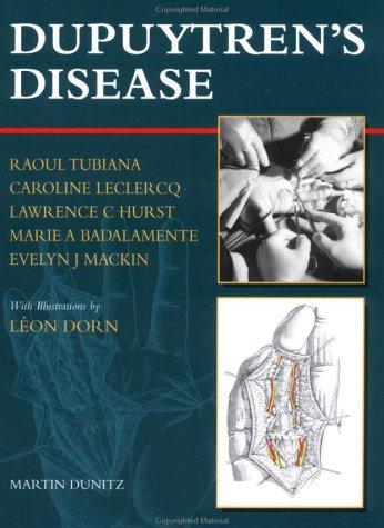 Dupuytren's Disease 9781853174759