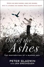 Out of the Ashes: The Restoration of a Burned Boy