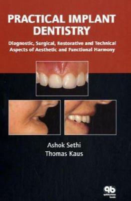 Practical Implant Dentistry 9781850970613