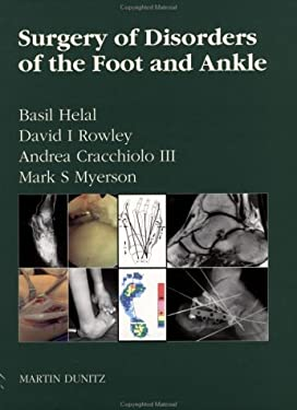 Surgery of Disorders of the Foot and Ankle 9781853172120
