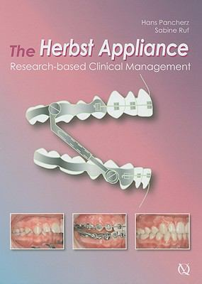 The Herbst Appliance: Research-Based Clinical Management 9781850971696