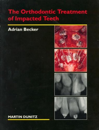The Orthodontic Treatment of Impacted Teeth 9781853173288