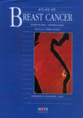Atlas of Breast Cancer 9781873413708