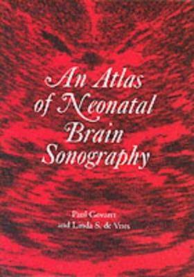 An Atlas of Neonatal Brain Sonography 9781898683094