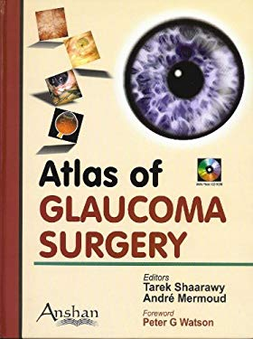 Atlas of Glaucoma Surgery 9781904798675