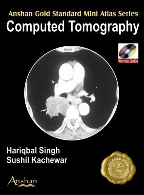 Computed Tomography [With Mini CDROM] 9781905740123