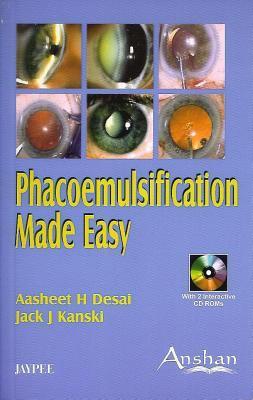 Phacoemulsification Made Easy 9781904798651