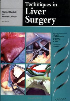Techniques in Liver Surgery