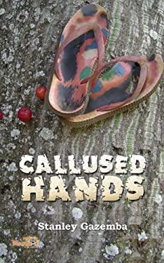 Callused Hands