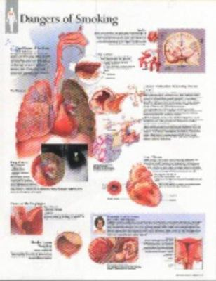 Effects of Smoking Chart: Wall Chart 9781930633360