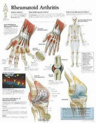 Rheumatoid Arthritis: Wall Chart 9781930633384