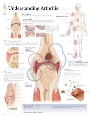 Understanding Arthritis Chart: Wall Chart 9781932922219