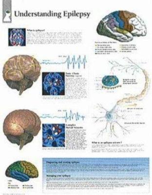 Understanding Epilepsy Chart: Wall Chart 9781932922233
