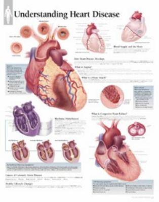 Understanding Heart Disease Chart: Laminated Wall Chart 9781930633476