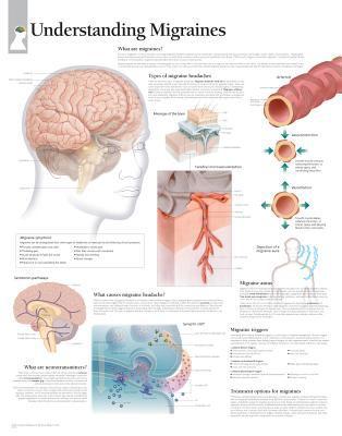 Understanding Migraines Chart: Wall Chart 9781932922196