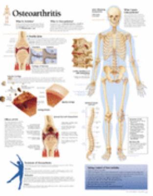 Understanding Osteoarthritis Chart: Wall Chart 9781930633148