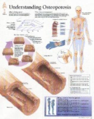 Understanding Osteoporosis Chart: Wall Chart 9781930633308