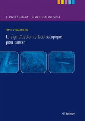 La Sigmoidectomie Laparoscopique Pour Cancer: Precis D'Intervention 9782287928420