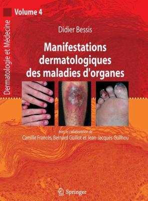 Manifestations Dermatologiques Des Maladies D'Organes: Dermatologie Et M Decine, Vol. 4 9782287720727