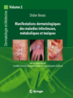Manifestations Dermatologiques Des Maladies Infectieuses, M Taboliques Et Toxiques: Dermatologie Et M Decine, Vol. 2 9782287484933