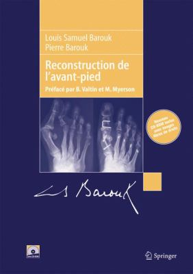 Reconstruction de L'Avant-Pied