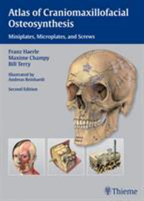 Atlas of Craniomaxillofacial Osteosynthesis: Microplates, Miniplates, and Screws 9783131164926