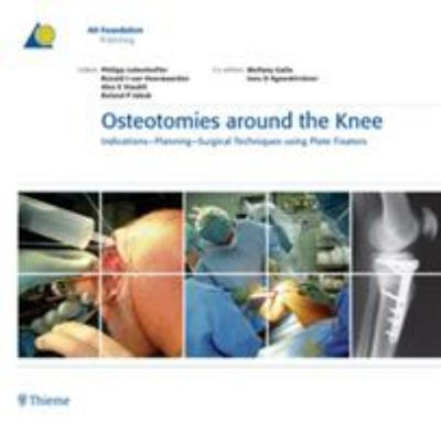 Osteotomies Around the Knee: Indications-Planning-Surgical Techniques Using Plate Fixators 9783131475312