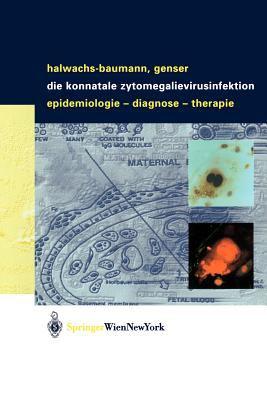 Die Konnatale Zytomegalievirusinfektion: Epidemiologie - Diagnose - Therapie 9783211008010