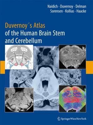 Durvernoy's Atlas of the Human Brain Stem and Cerebellum