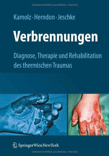 Verbrennungen: Diagnose, Therapie Und Rehabilitation Des Thermischen Traumas 9783211798959