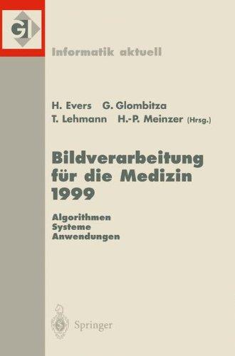 Bildverarbeitung F R Die Medizin 1999: Algorithmen Systeme Anwendungen Proceedings Des Workshops Am 4. Und 5. M Rz 1999 in Heidelberg 9783540656272
