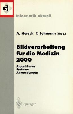 Bildverarbeitung F R Die Medizin 2000: Algorithmen - Systeme - Anwendungen 9783540671237